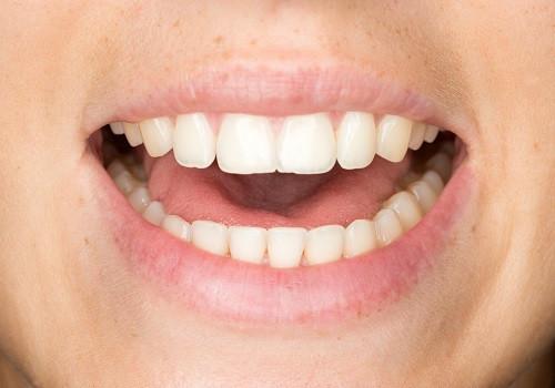 11,4% van de minderjarigen tussen 4 en 18 jaar waarschijnlijk niet naar de tandarts